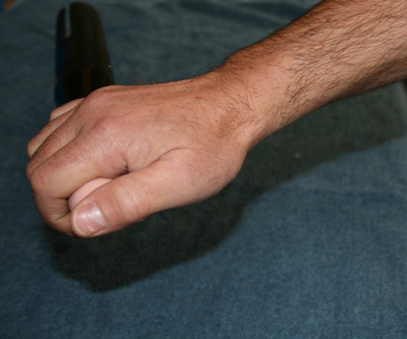 Photo of scull grip in recovery