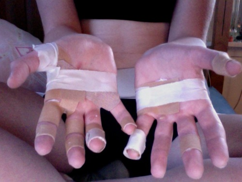 Rowing blisters and taped hands