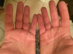 Rowing blistered hands