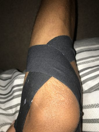 Strapping tape , knee injury, Tape support