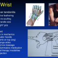 rowing injury, tendonitis rowing, sculling wrist injury